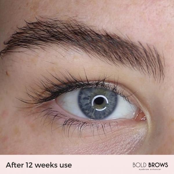 Bold Brows Eyebrow Enhancer Serum